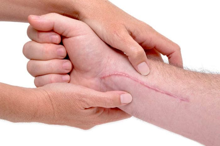 Tejido cicatricial: causas, prevención y tratamiento