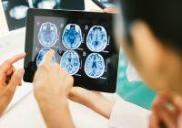 Erste Symptome eines Hirntumors