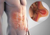 O que saber sobre uma hérnia inguinal