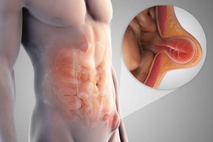 Que saber sobre una hernia inguinal