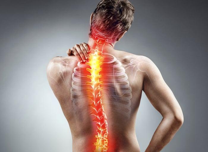 您需要了解的关于脊髓空洞症的所有信息