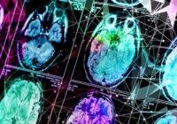 قد يشير قياس الحديد في الدماغ إلى الخرف