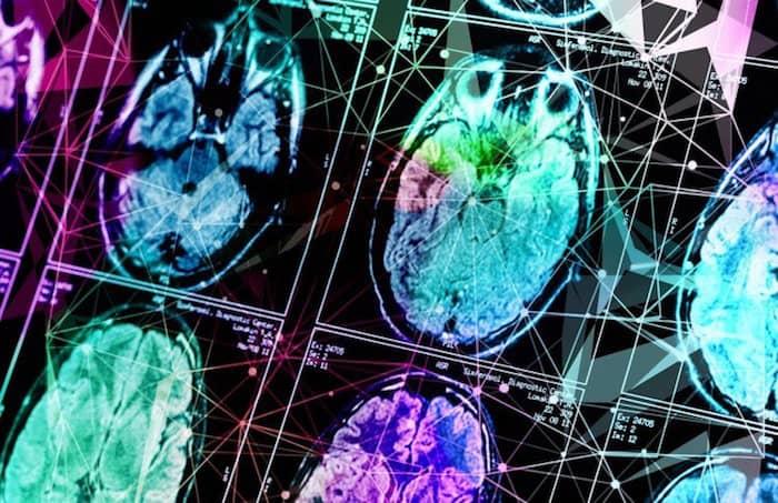 Die Messung von Eisen im Gehirn kann auf Demenz hinweisen