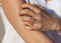 picazón en la piel sin erupción
