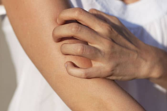 juckende Haut ohne Hautausschlag
