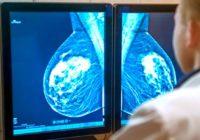 ¿Cómo se relaciona el tamaño del tumor con la etapa del cáncer de seno?