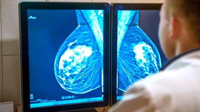 Quel est le lien entre la taille de la tumeur et le stade du cancer du sein?
